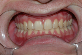 smile gallery before and after dental photos smile